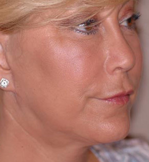 Facelift in my 60s - After Treatment Photo - female, oblique view, patient 4