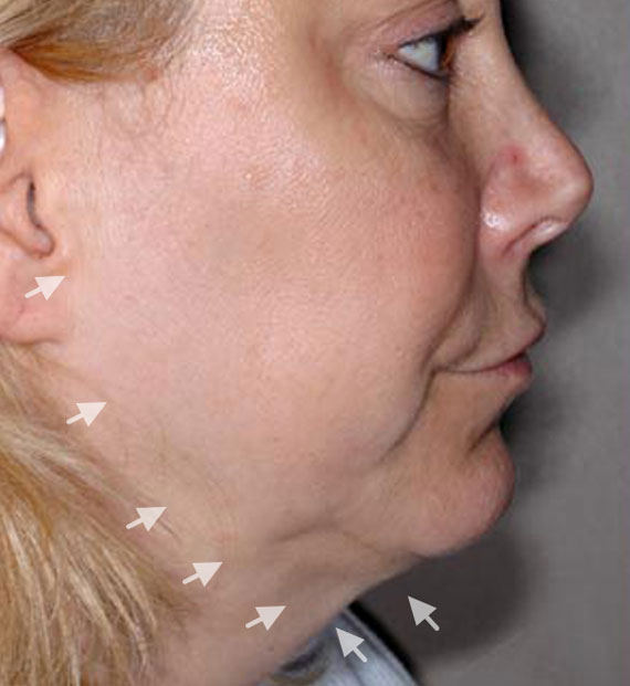 Facelift in my 60s - Before Treatment Photo - female, right side view, patient 4