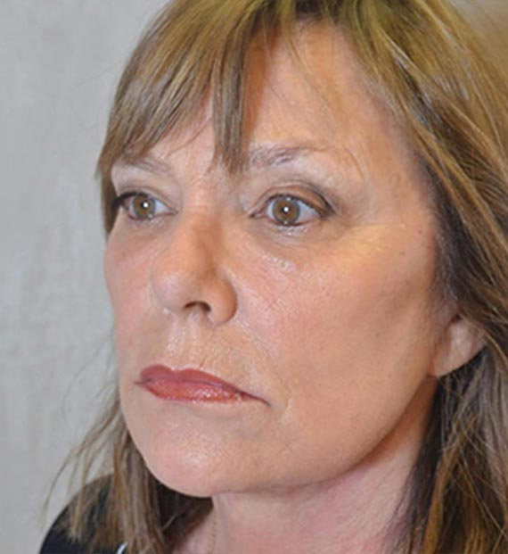 FaceLift - After Treatment Photo - female, left side oblique view, patient 1