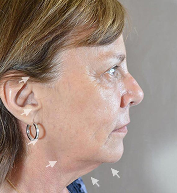 Facelift in my 60s - Before Treatment Photo - female, right side view, patient 1