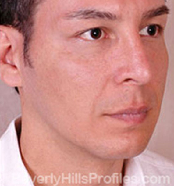 ANTI-AGING TREATMENTS IN MY 40S OR 50S - After Treatment Photo - male, oblique view, patient 2
