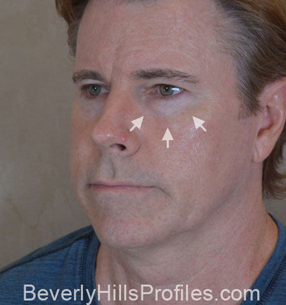 ANTI-AGING TREATMENTS IN MY 40S OR 50S - Before Treatment Photo - male, oblique view, patient 4