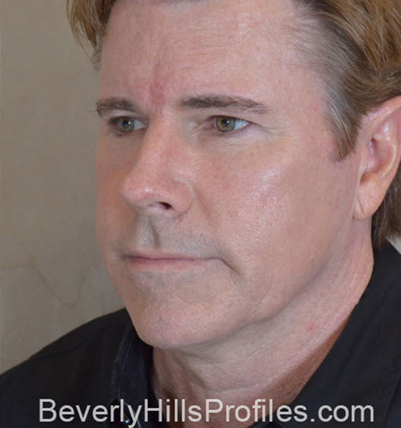 ANTI-AGING TREATMENTS IN MY 40S OR 50S - After Treatment Photo - male, oblique view, patient 4