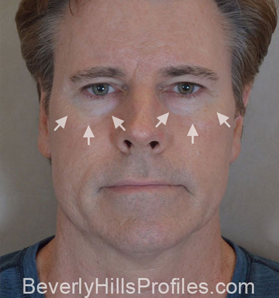 ANTI-AGING TREATMENTS IN MY 40S OR 50S - Before Treatment Photo - male, front view, patient 4