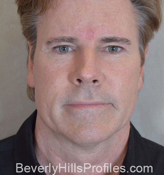 ANTI-AGING TREATMENTS IN MY 40S OR 50S - After Treatment Photo - male, front view, patient 4