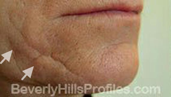 Injectable fillers: Before treatment photo, oblique view, patient 1