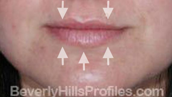 Injectable fillers: Before treatment photo, front view, female patient 2
