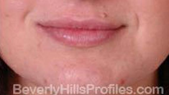 Injectable fillers: After treatment photo, front view, female patient 2