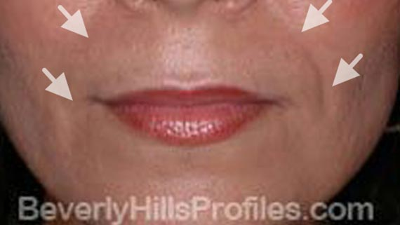 Injectable fillers: Before treatment photo, front view, female patient 3