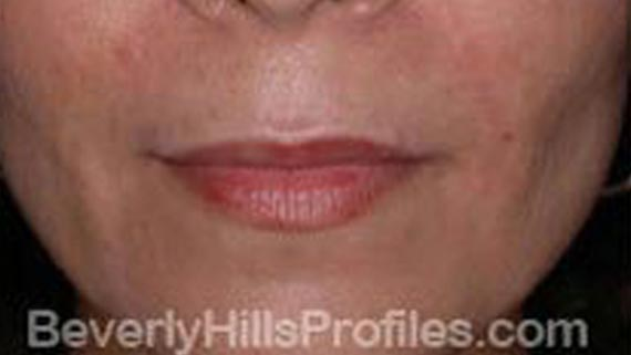 Injectable fillers: After treatment photo, front view, female patient 3