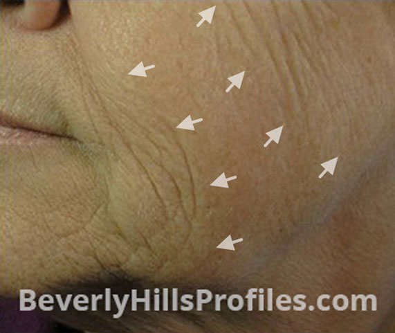Intense Pulsed Light (IPL): Before Treatment Photo - female (cheek), oblique view, patient 2