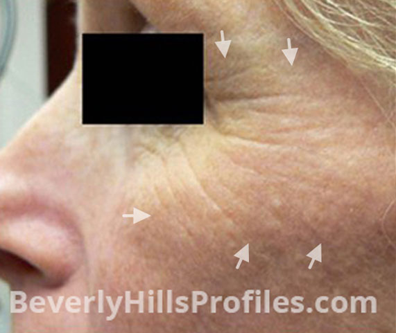 Intense Pulsed Light (IPL): Before Treatment Photo - female, left side view, patient 5
