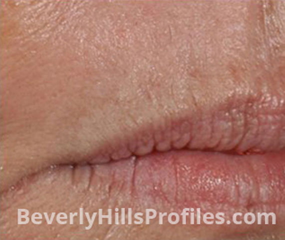 Intense Pulsed Light (IPL): After Treatment Photo - female (lips), right side view, patient 7