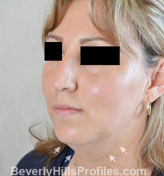 FaceLift, neck contouring surgery - Before Treatment Photo - female, left side oblique view, patient 1