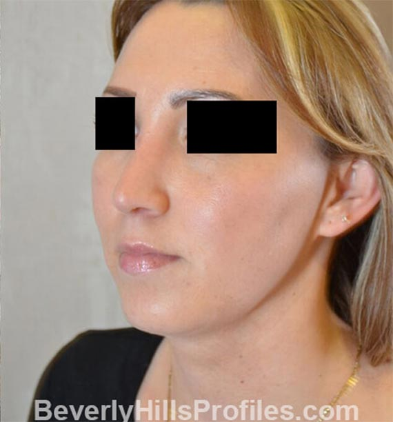 FaceLift, neck contouring surgery - After Treatment Photo - female, left side oblique view, patient 1