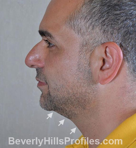 FaceLift, neck contouring surgery - Before Treatment Photo - male, left side view, patient 5
