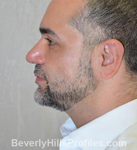 FaceLift, neck contouring surgery - After Treatment Photo - male, left side view, patient 5