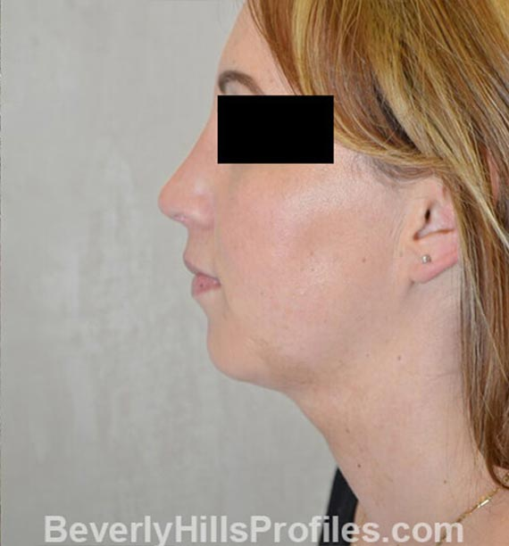 FaceLift, neck contouring surgery - After Treatment Photo - female, left side view, patient 1