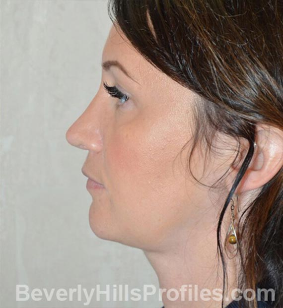 FaceLift, neck contouring surgery - After Treatment Photo - female, left side view, patient 2