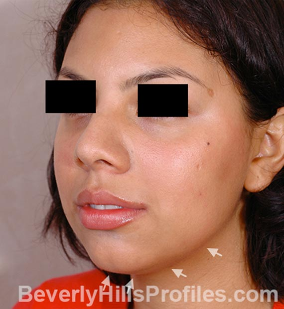 FaceLift, neck contouring surgery - Before Treatment Photo - female, left side oblique view, patient 3