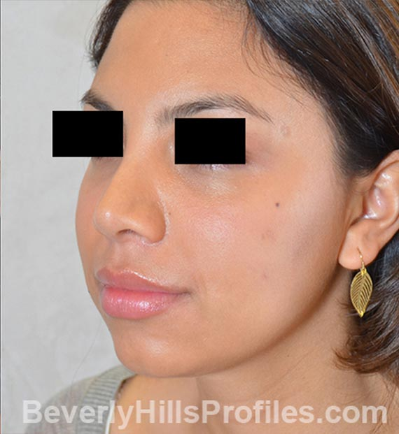 FaceLift, neck contouring surgery - After Treatment Photo - female, left side oblique view, patient 3