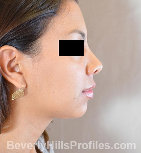 FaceLift, neck contouring surgery - After Treatment Photo - female, right side view, patient 3