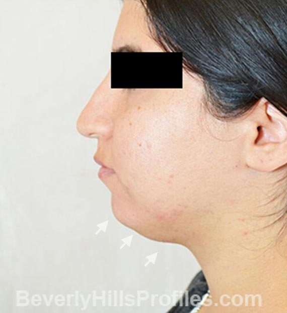 FaceLift, neck contouring surgery - Before Treatment Photo - female, left side view, patient 4