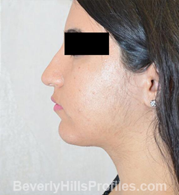 FaceLift, neck contouring surgery - After Treatment Photo - female, left side view, patient 4