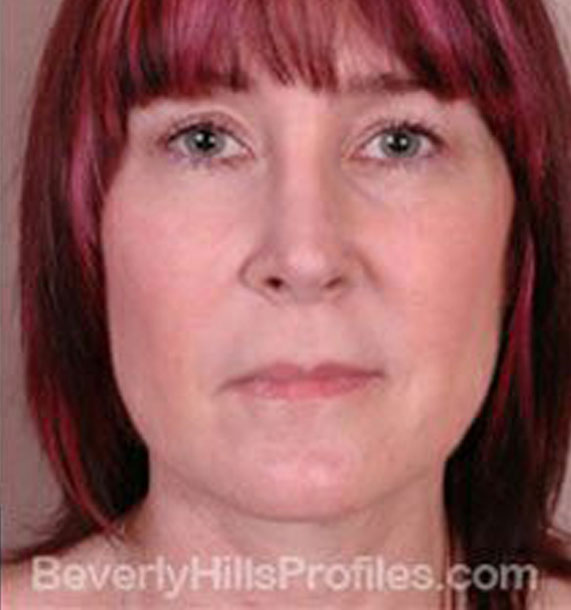 ANTI-AGING TREATMENTS IN MY 40S OR 50S - After Treatment Photo - female, neck liposuction,front view, patient 5