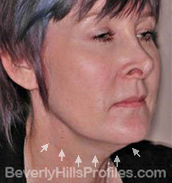 ANTI-AGING TREATMENTS IN MY 40S OR 50S - Before Treatment Photo - female, neck liposuction, oblique view, patient 5