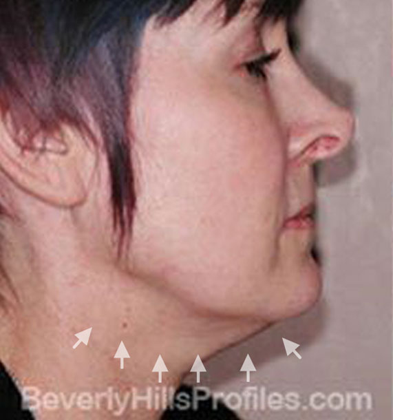 ANTI-AGING TREATMENTS IN MY 40S OR 50S - Before Treatment Photo - female, neck liposuction, right side view, patient 5