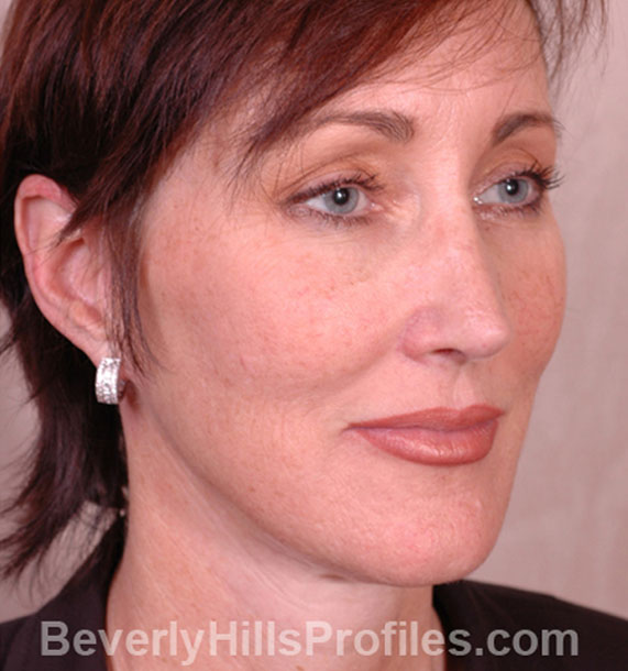 ANTI-AGING TREATMENTS IN MY 40S OR 50S - After Treatment Photo - female, neck liposuction, oblique view, patient 6