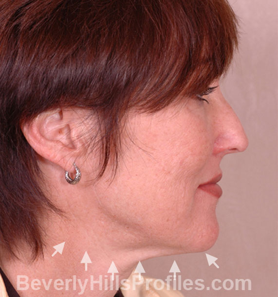 ANTI-AGING TREATMENTS IN MY 40S OR 50S - Before Treatment Photo - female, neck liposuction, right side view, patient 6