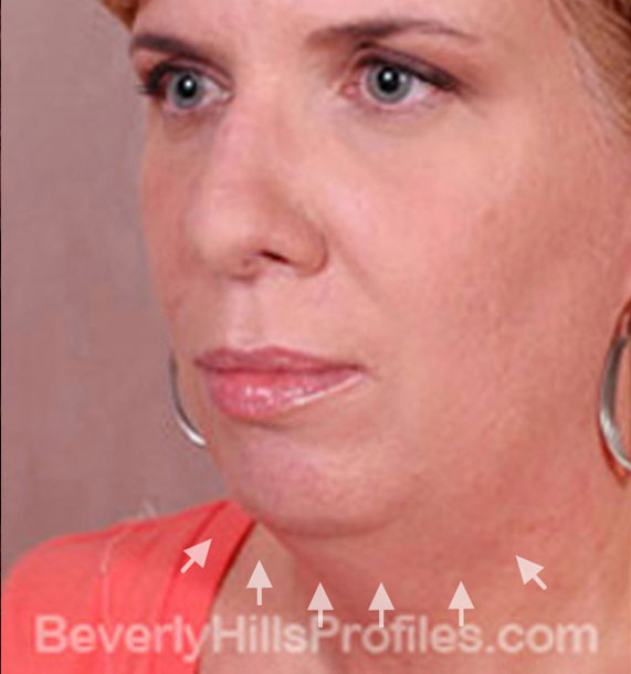 ANTI-AGING TREATMENTS IN MY 40S OR 50S - Before Treatment Photo - female, neck liposuction, oblique view, patient 7