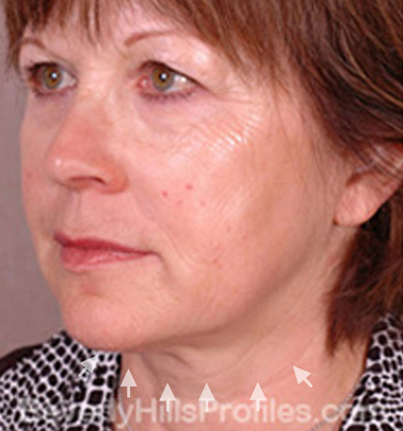 ANTI-AGING TREATMENTS IN MY 40S OR 50S - Before Treatment Photo - female, neck liposuction, oblique view, patient 8