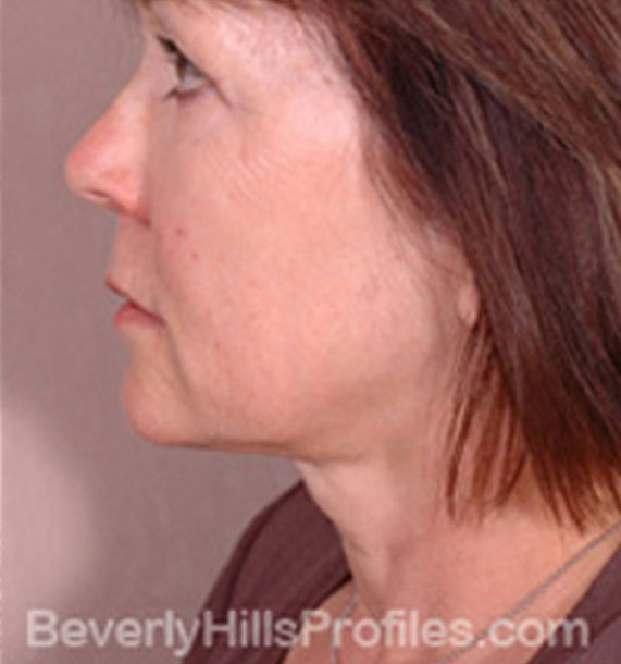 ANTI-AGING TREATMENTS IN MY 40S OR 50S - After Treatment Photo - female, neck liposuction, left side view, patient 8