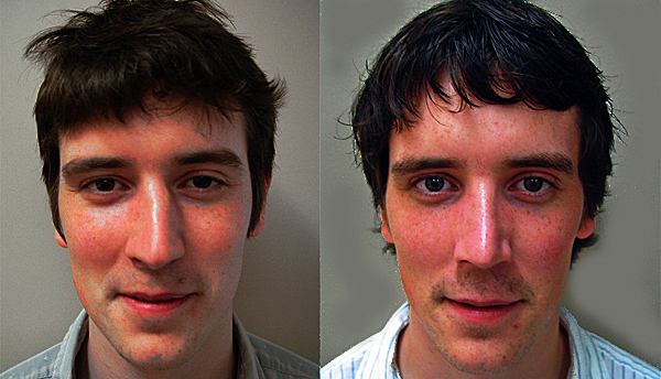 before and after cosmetic rhinoplasty