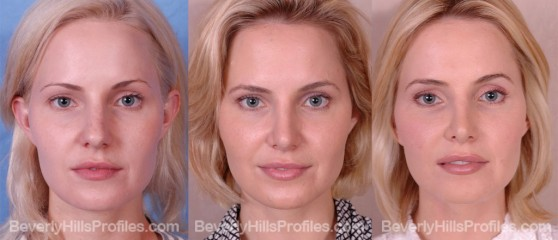 three photos before and after Rhinoplasty - front view