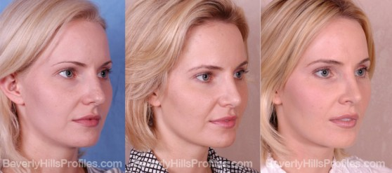 three photos before and after Rhinoplasty - oblique view