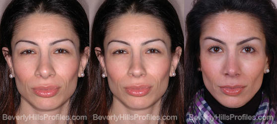 before and after revision rhinoplasty surgery front