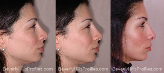 before and after revision rhinoplasty surgery profile