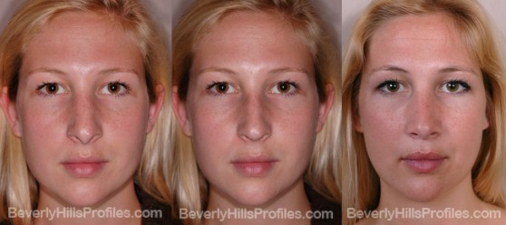 Female before after revision rhinoplasty surgery front