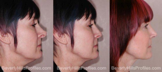 Female before and after revision rhinoplasty surgery profile