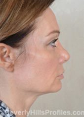 Female face, before Fat Grafting treatment, right side view, patient 1