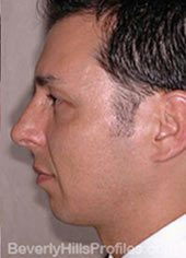 Male face, before Fat Grafting treatment, Left side view, patient 1