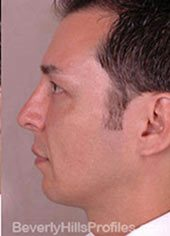 Male face, after Fat Grafting treatment, Left side view, patient 1