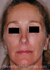 Female face, before Revision Facelifts treatment, front view, patient 1