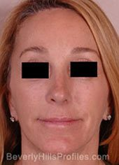 Female face, after Revision Facelifts treatment, front view, patient 1