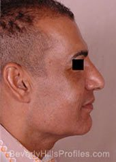 Mini Facelift Surgery. Before Treatment Photo - male, right side view, patient 2