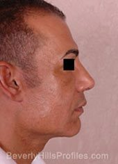 Male face, after Revision Facelifts treatment, right side view, patient 2